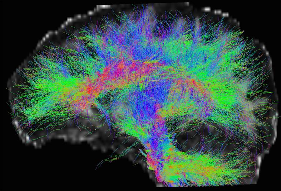 Images de tractographie par IRM de diffusion montrant les faisceaux de fibres cérébrales (Gabriel Kocevar, CREATIS ; CERMEP)