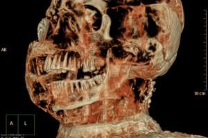 Pompeii's Archaeological Superintendence Press Office (ANSA) http://www.pompeiisites.org/Sezione.jsp?titolo=Indagini%20tomografiche%20per%20studiare%20le%20vittime%20dell%E2%80%99eruzione%20di%20Pompei&idSezione=7073