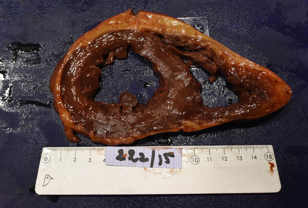 Coupe d'un coeur : ses dimensions exceptionnelles indiquent un état pathologique