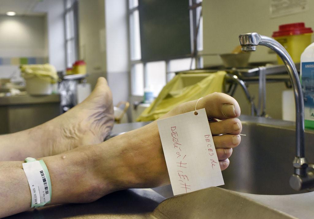 Comme à l'hôpital, les personnes autopsiées sont identifiées par un bracelet.